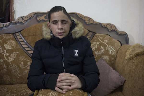 "Mohammed Tamimi was shot in the face with a rubber-coated bullet, 1-hour before Ahed Tamimi slapped an Israeli soldier.  A top Israeli military official has claimed that the shooting is ""fake news,"" and that Mohammed had an accident on his bicycle."