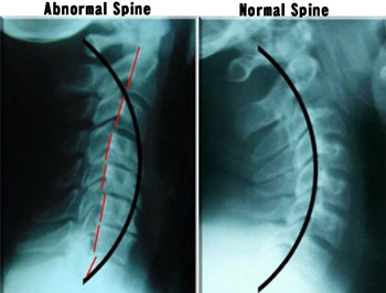 abnormal-vs-normal-spine.jpg