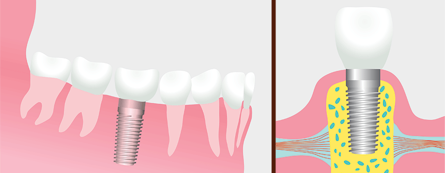 Visual of how implants are inserted into the bone