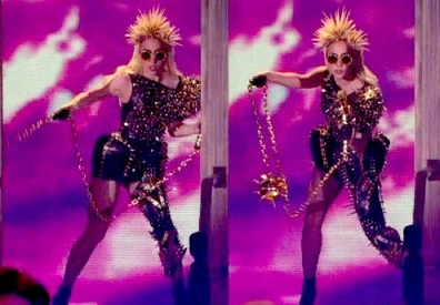 Metal Leg Brace - Lady Gaga - The Oprah Winfrey Show