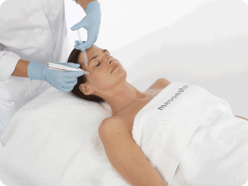 m.pen-PRO-treatment-V2-500x375.png