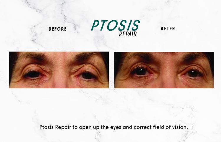 PTOSIS-REPAIR_IMAGE_1-1.png