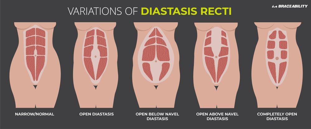 diastasis-recti-variations-abdominal-seperations.jpg