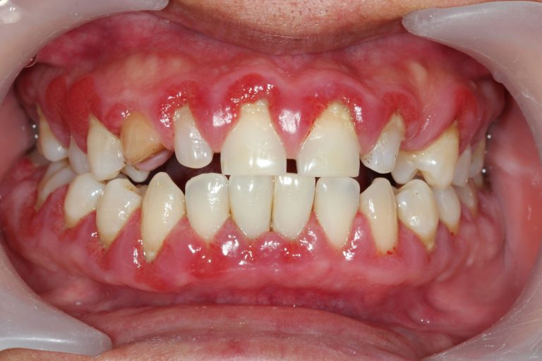 Receive Several Types of Gingivitis Treatment in Lincoln.jpg