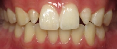 Cerec Dentistry Before.jpg