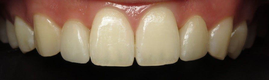 Cerec Denistry After.jpg