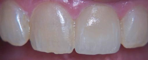 After Cerec Tooth Repair.jpg