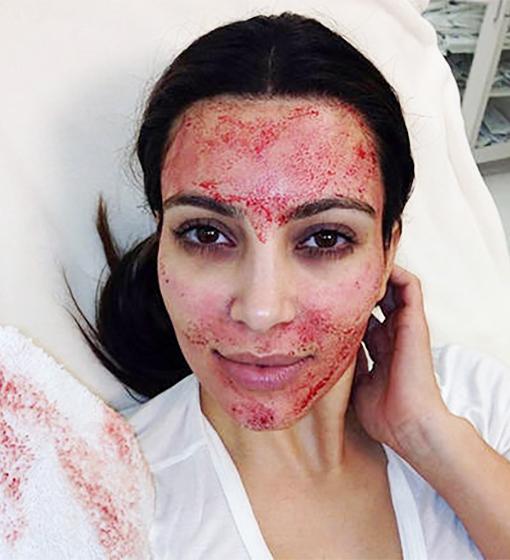 kim-kardashian-vampire-facial