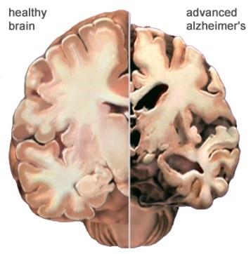 2014-0701-brain.jpg