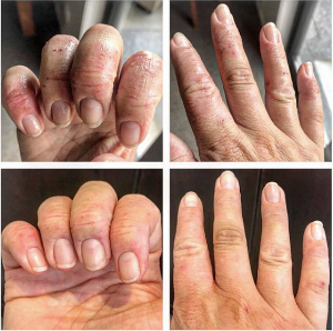 MELISSA - HANDS AFTER 1 WEEK (TOP BEFORE, BOTTOM AFTER)