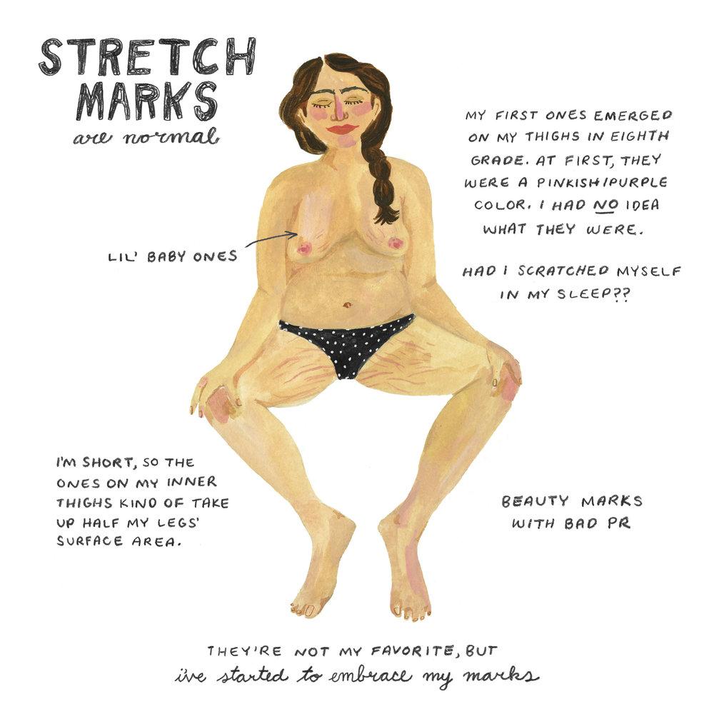 stretchmarks.jpg