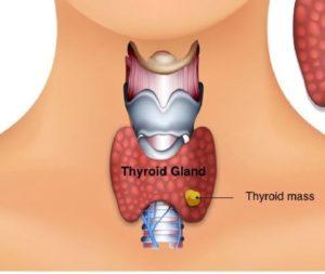 thyroid-and-parathyroid-1024x573