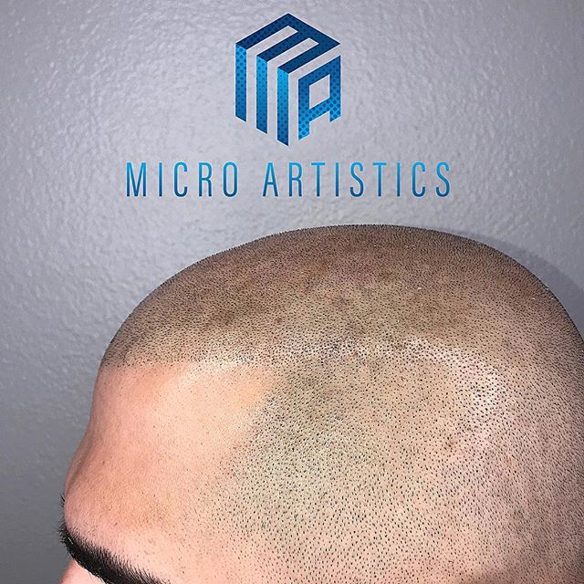 All Natural Results  SCALP MICRO PIGMENTATION  Work done by @cutz310  NO more hats 🧢  NO more fibers NO more sprays Being bald is a choice now  DM or Email to set up a FREE consultation 🔵MICRO ARTISTICS🔵 ⭐️S.T.A.R CERTIFIED ⭐️ LOS ANGELES LOCATION  @scalptattooartistresourceplus @star_smpartist  #scalpmicropigmentation #smp #microblading #hairloss #hairlosssolution #hairlosstreatment #hair #hairstyles #confidence #beyoungagain #barber #barbershop #barberlife #losangeles #S.T.A.R #starcertified #marinadelray #santamonica #venice #hollywood #beverlyhills @smp.masters