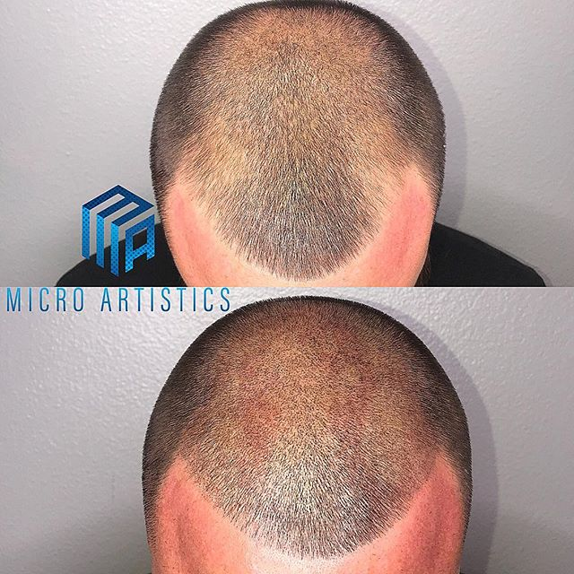Before and after 2nd session 🔵MICRO ARTISTICS🔵 SCALP MICRO PIGMENTATION  Work done by @cutz310  #smp #scalpmicropigmentation #scalptreatment #microblading #hairloss #hairlosssolution #hairlosstreatment #hair #hairstyles #barber #barbershop #smpartist #starcertified #microartistics #marinadelrey #santamonica #venice #culvercity #hollywood #beverlyhills #cali #california #losangeles @smp.masters @scalptattooartistresourceplus