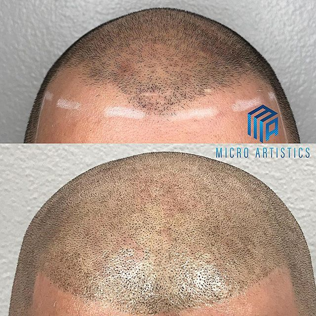 SCALP MICRO PIGMENTATION is the best solution to hair loss with guaranteed natural results‼️ No more hats 🧢 no more fiber powder.. being bald is a choice now. Dm me to set up your free consultation work done by @cutz310 #smp #scalpmicropigmentation #scalptreatment #scalppigmentation #scalptattoo #microblading #hairloss #hairlosssolution #hairlosstreatment #hairlossspecialist #smpartist #starcertified #microartistics #marinadelrey #santamonica #venice #hollywood #beverlyhills #california #losangeles #smplosangeles