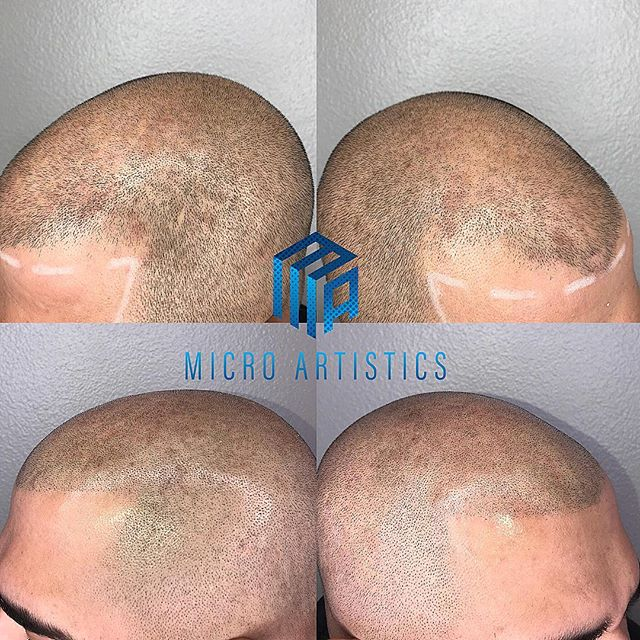 Scalp Micro Pigmentation  NO more hats 🧢  NO more fibers NO more sprays Being bald is a choice now  DM or Email to set up a FREE consultation 🔵MICRO ARTISTICS🔵 ⭐️S.T.A.R CERTIFIED ⭐️ LOS ANGELES LOCATION  @scalptattooartistresourceplus @star_smpartist  #scalpmicropigmentation #smp #microblading #hairloss #hairlosssolution #hairlosstreatment #hair #hairstyles #confidence #beyoungagain #barber #barbershop #barberlife #losangeles #S.T.A.R #starcertified #marinadelray #santamonica #venice #hollywood #beverlyhills