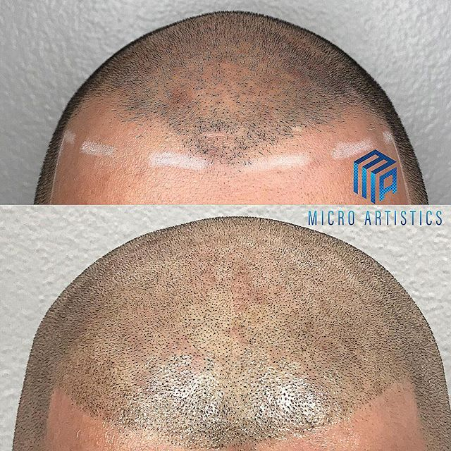 Bring your hairline back for the summer 20%off your procedure through the rest of July so book your FREE consultation the link is in my bio #barber #barbershop #microblading #scalpmicropigmentation #micro #pigmentation #hair #hairloss #hairline #marinadelrey #santamonica #venice #hollywood #beverlyhills