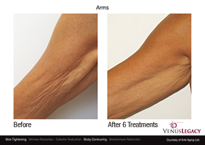 Venus Legacy™ Skin Tightening Treatment - Edmonton - New Image Cosmetic - Non Surgical
