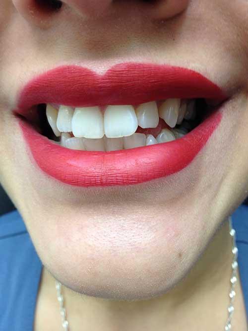 Teeth Whitening  - Edmonton - New Image Cosmetic - Luxury Medical Spa