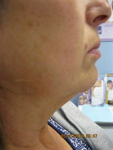 Belkyra Edmonton - Double Chin Treatment - Non Surgical