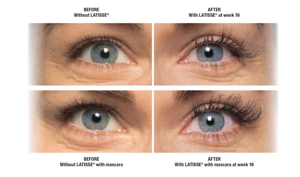 Latisse - Eyelashes - Alternative to Lash Extensions - Edmonton - New Image Cosmetic - Luxury Medical Spa