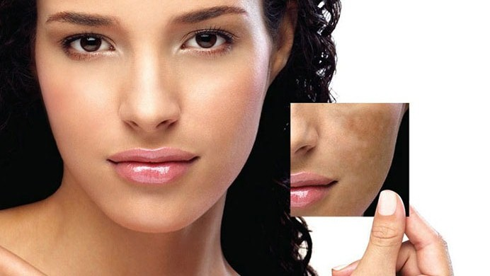 Skin Pigmentation Treatment - New Image Cosmetic -