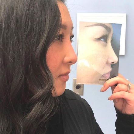 Edmonton - New Image Cosmetic - Dr. Poon - Lip Injections - Botox - CoolSculpting - Fillers - Laser - Spa - Non Surgical Nose Job Enhancement