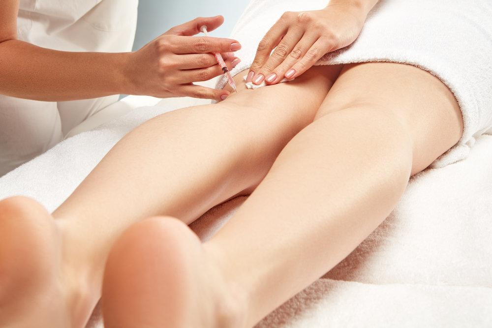 Leg Vein Treatment - Spider Veins - Sclerotherapy Treatment - Edmonton