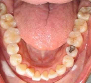 Invisalign K3 before.jpg