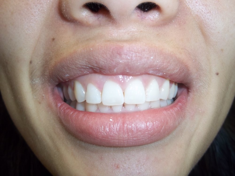 Invisalign C4 after.JPG