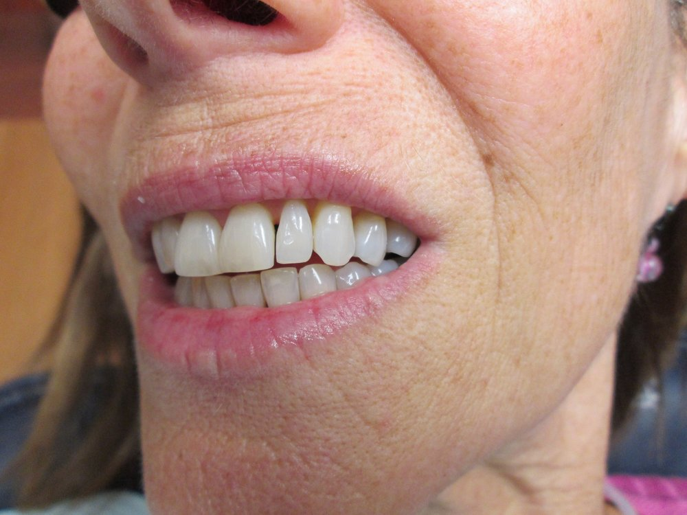 composite veneers to reshape teeth, gap closure on front 4 teeth before.jpeg