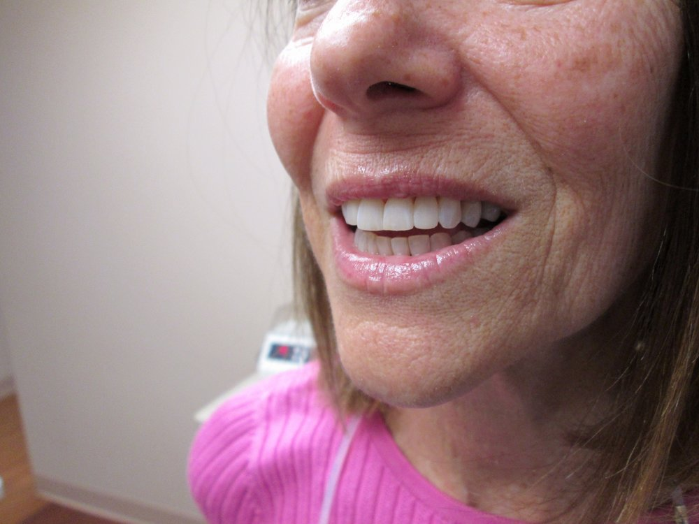 composite veneers to reshape teeth, gap closure on front 4 teeth after (2).jpeg