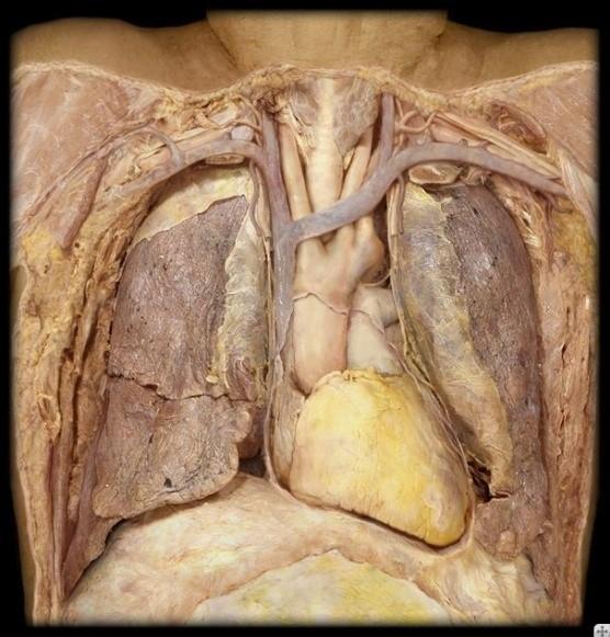 heart2a.jpg