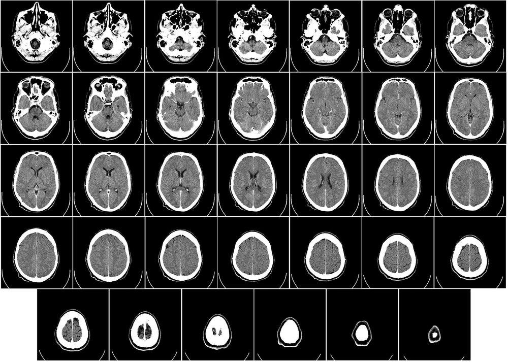 computer-tomography-62942_1920.jpg