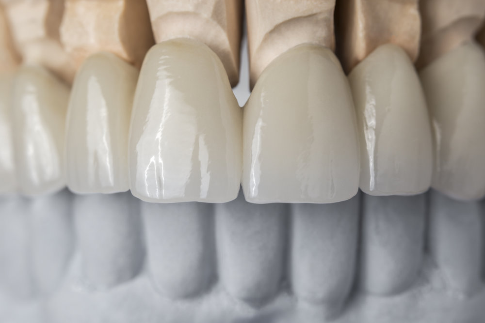 Crowns, Bridges, Veneers - Have you cracked or broken a tooth? Do you have a missing tooth that you wish to replace? Are you unhappy with the aesthetics of your teeth? Our dentists can help you choose the best solution.Learn More