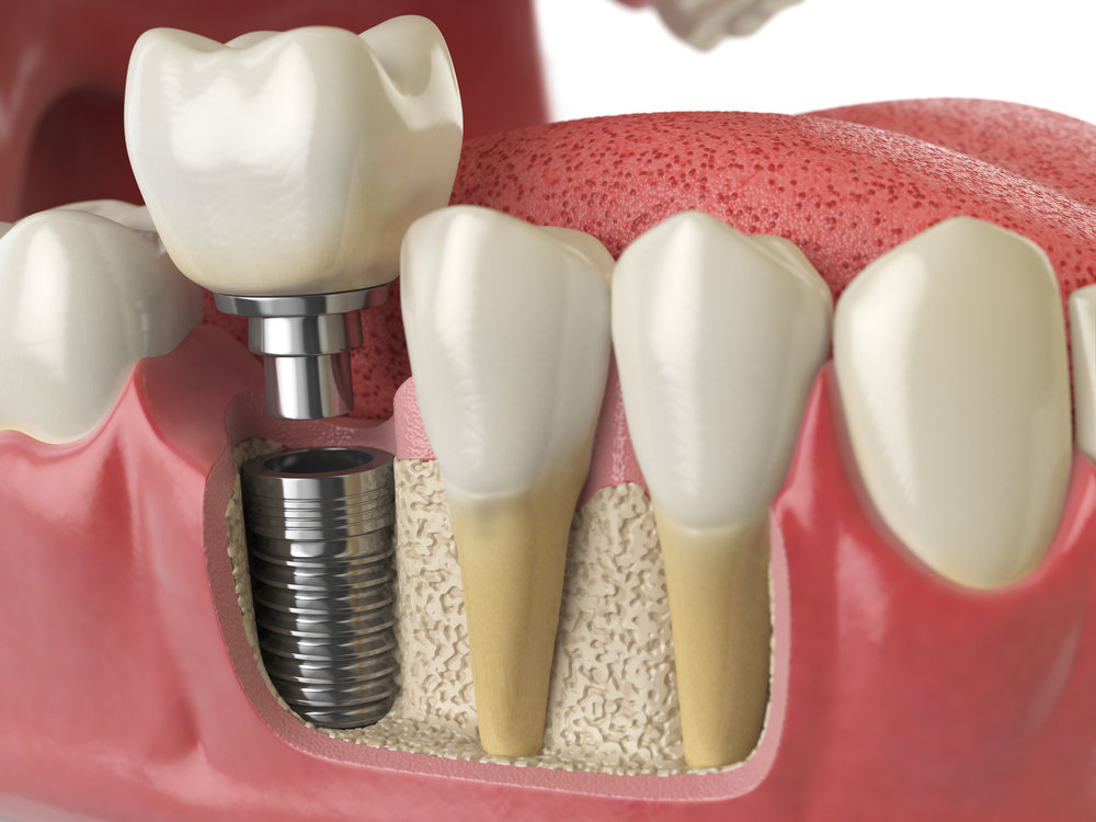 Implants - Dental implants are used to mimic the form and function of our natural teeth. They can be used to replace single teeth, multiple teeth, and restore an entire dentition when needed.Learn More