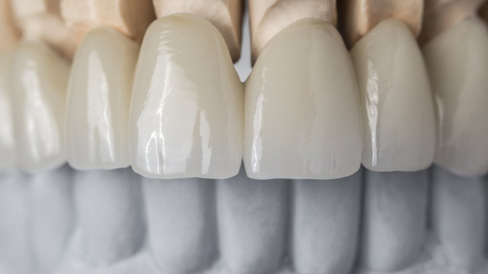 Crowns, Bridges, Veneers -