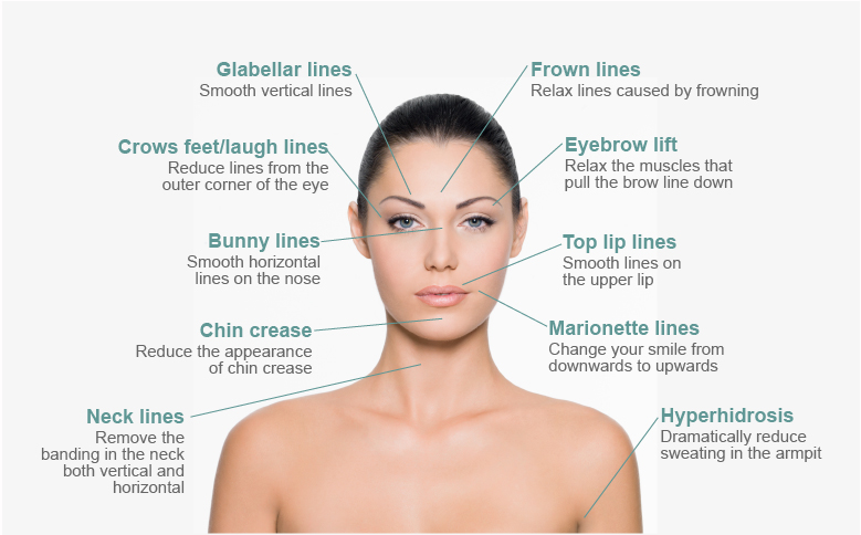 Botox-Diagram.jpg