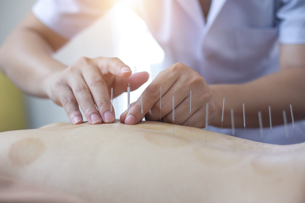 Acupuncture - needle patterning and placement