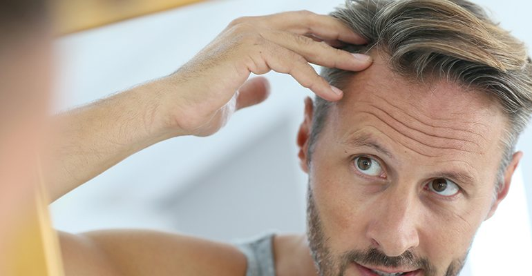 Middle-aged man checking his hairline to hair loss or hair thinning