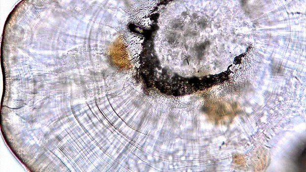 Smaller than a grain of sand ... close-up of a seadragon ear bone. Photo: Kerryn Parkinson from SMH
