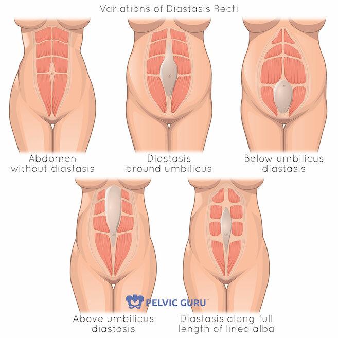 How To Measure Diastasis Recti
