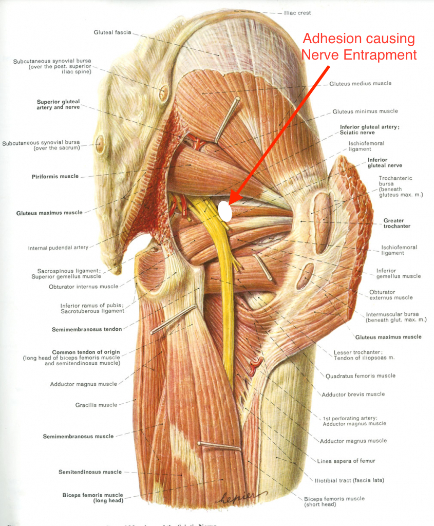Knee Pain Functional Spine And Sport