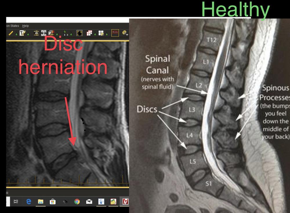 Joe T MRI.jpg