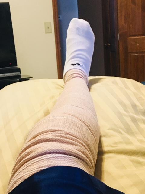 Knee surgery 8-31-2018.jpg