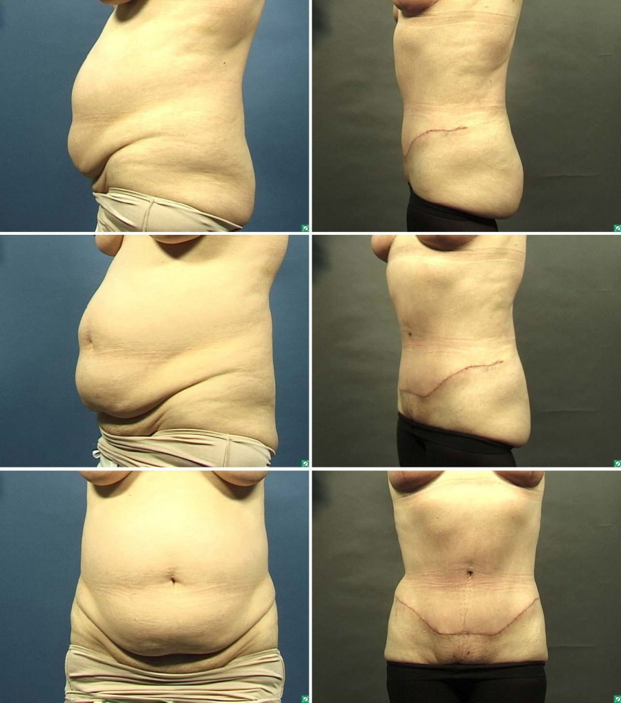 Best Dallas Tummy Tuck.jpg