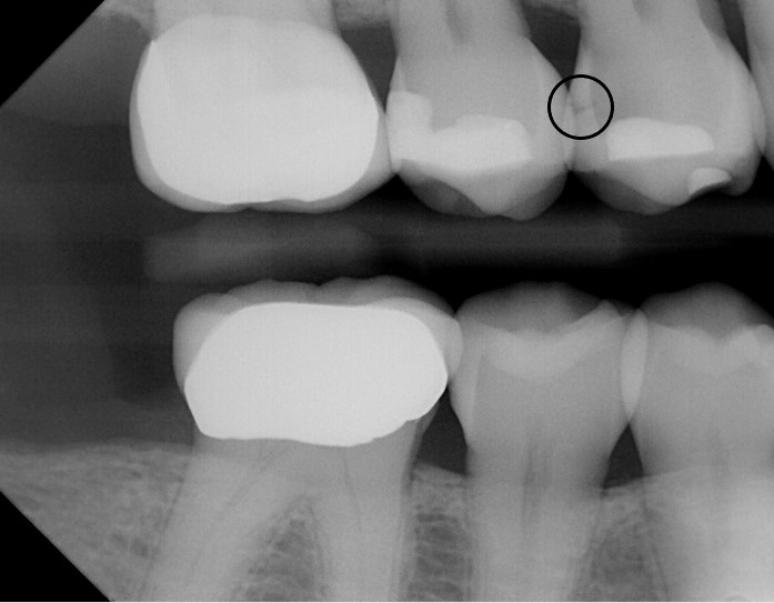 Using digital imaging, we are able to detect decay that is not visible with a visual exam.