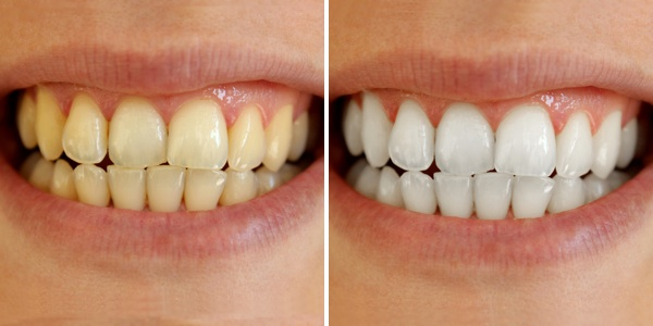 teeth-whitening-before-after.jpg
