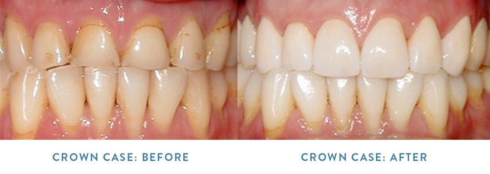 The patient above, received 8 porcelain crowns on the  upper arch  (top row) of teeth in order to treat stained edges, wearing, chipping, and some gumline recession. After the treatment, the edges are now uniform and the patient has longer, better-shaped teeth to enhance the smile and aid in chewing/biting function.