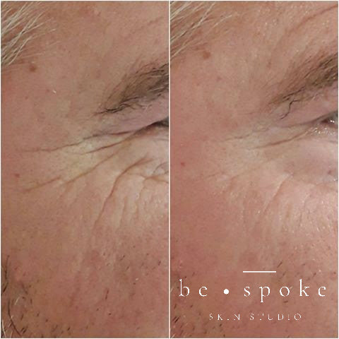 Scullpla H2 Mask- Before & After 1 treatment